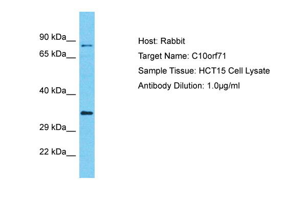C10orf71 Antibody - C-terminal region (ARP69191_P050) in Human HCT15 cells using Western Blot