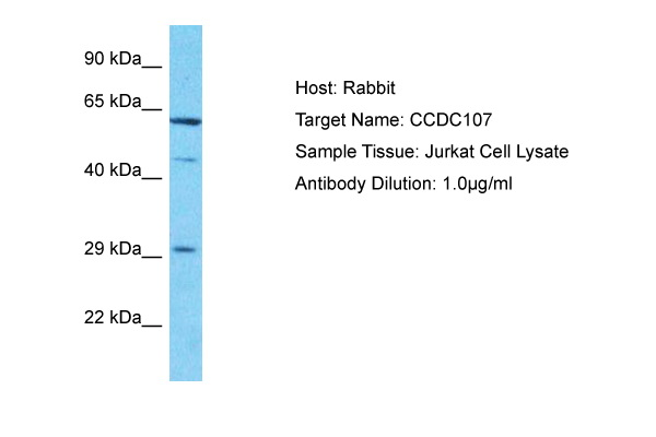 CCDC107 Antibody - N-terminal region (ARP69473_P050) in Human Jurkat cells using Western Blot
