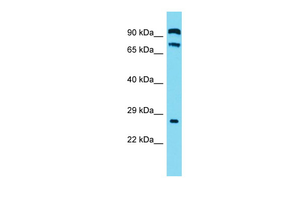 C2orf70 Antibody - C-terminal region (ARP69655_P050) in Human OVCAR-3 cells using Western Blot