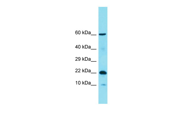 C11orf87 Antibody - C-terminal region (ARP69866_P050) in Human COLO205 cells using Western Blot