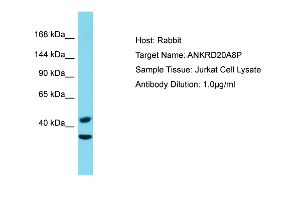 ANKRD20A8P Antibody - C-terminal region (ARP69927_P050) in Human Jurkat cells using Western Blot