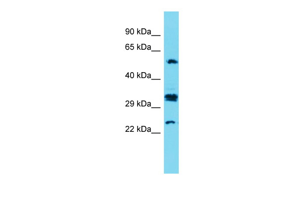 CT47A7 Antibody - C-terminal region (ARP70071_P050) in Human Fetal Kidney cells using Western Blot