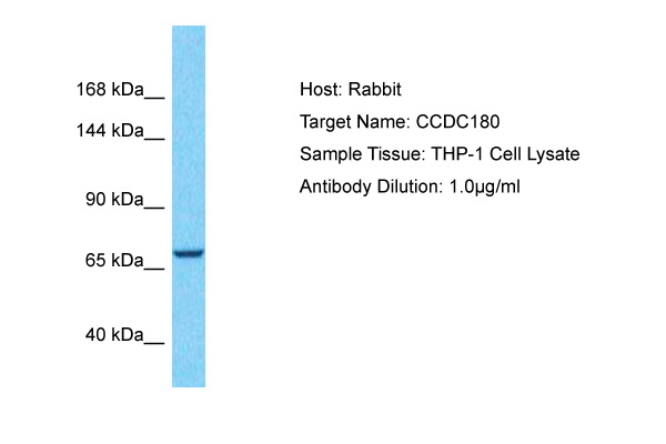 CCDC180 Antibody - middle region (ARP72130_P050) in Human THP-1 cells using Western Blot