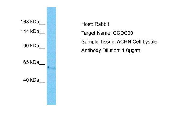 CCDC30 Antibody - C-terminal region (ARP72166_P050) in Human ACHN cells using Western Blot