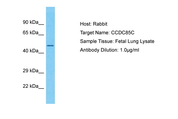 CCDC85C Antibody - C-terminal region (ARP72169_P050) in Human Fetal Lung cells using Western Blot
