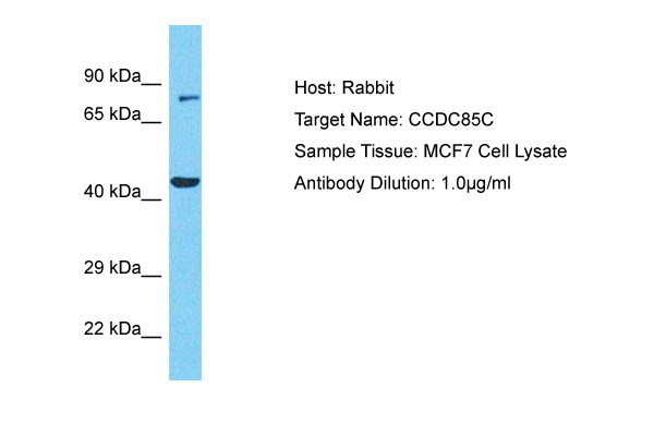 CCDC85C Antibody - N-terminal region (ARP72170_P050) in Human MCF7 cells using Western Blot