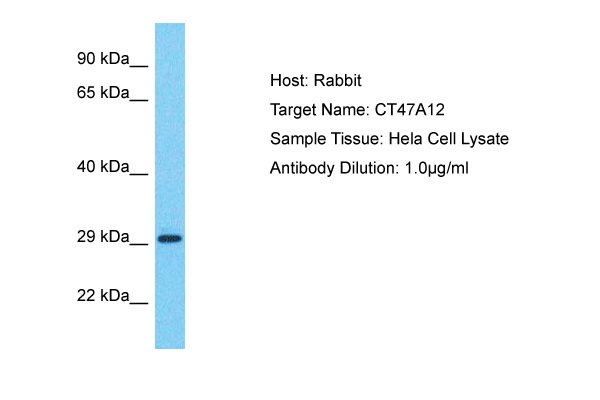 CT47A12 Antibody - C-terminal region (ARP72178_P050) in Human Hela cells using Western Blot