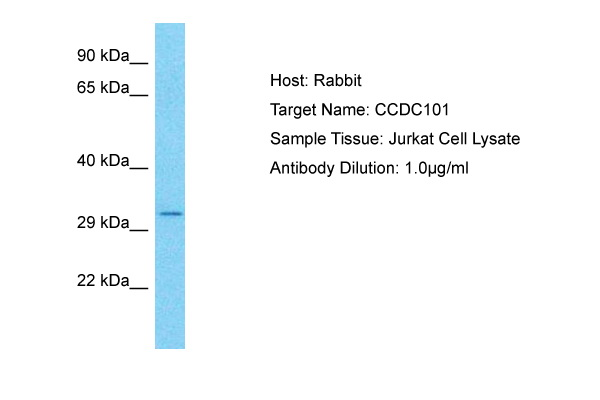 CCDC101 Antibody - middle region (ARP73474_P050) in Human Jurkat cells using Western Blot