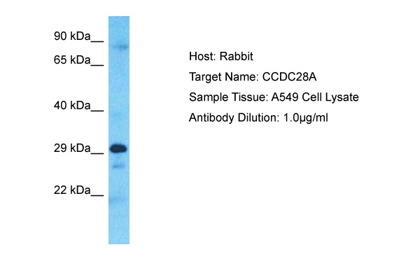 CCDC28A Antibody - C-terminal region (ARP73479_P050) in Human A549 cells using Western Blot