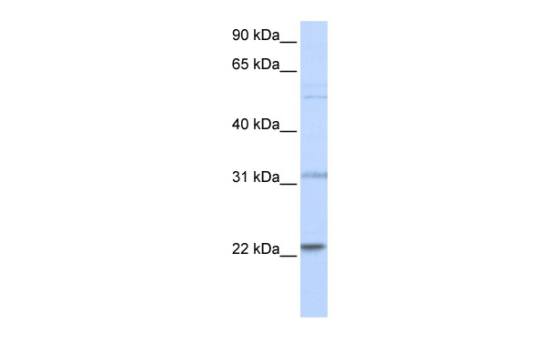 CDC42 antibody - N-terminal region (AVARP01017_P050) in Human 721_B cells using Western Blot