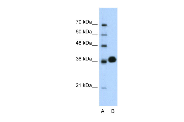 CDK6 antibody - C-terminal region (AVARP03005_T100) in Human Jurkat cells using Western Blot