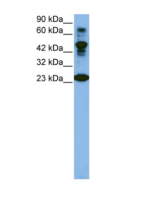 CDK2 antibody - C-terminal region (AVARP03006_T100) in Human Jurkat cells using Western Blot