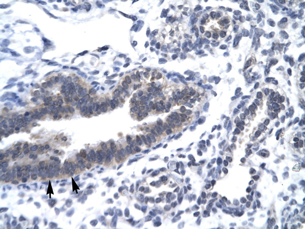 CCNH antibody - C-terminal region (AVARP03026_T100) in Human Lung cells using Immunohistochemistry