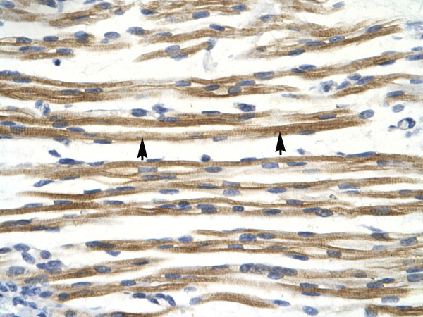 CCND3 antibody - C-terminal region (AVARP03038_P050) in Human Muscle cells using Immunohistochemistry
