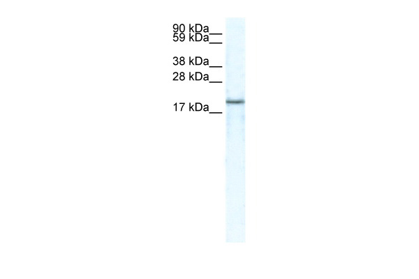 CXCL14 antibody - middle region (AVARP07023_P050) in Human HepG2 cells using Western Blot