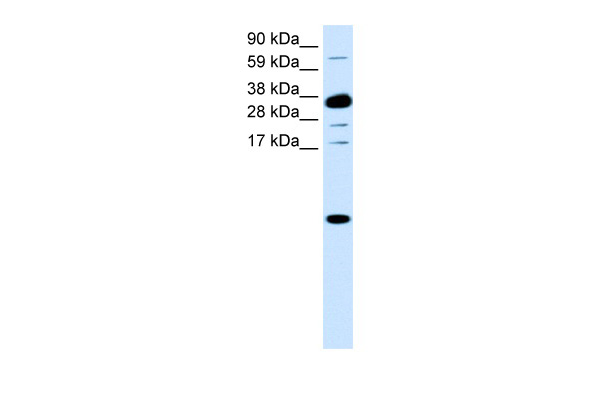 CXCL1 antibody - middle region (AVARP07032_P050) in Human Small Intestine cells using Western Blot