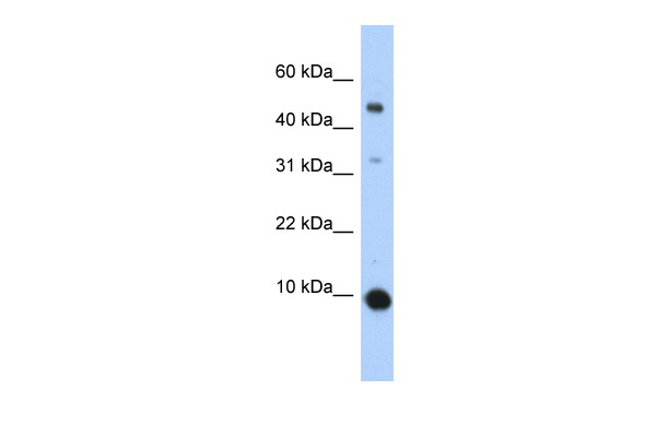 CCL2 antibody - middle region (AVARP07046_P050) in Human 293T cells using Western Blot