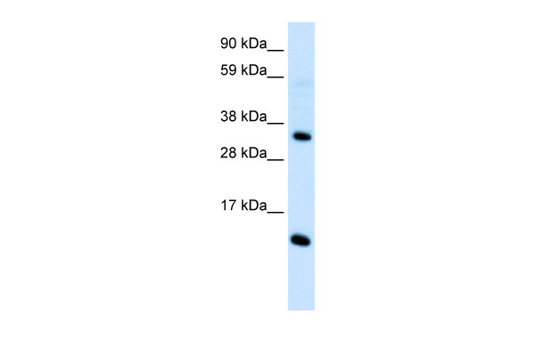CCL18 antibody - middle region (AVARP07049_P050) in Human Thymus cells using Western Blot