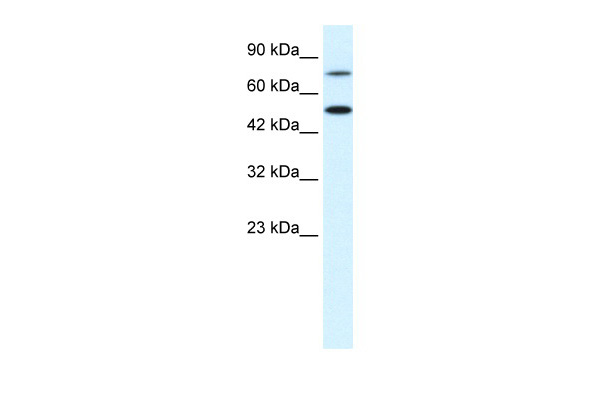 CHML antibody - N-terminal region (AVARP13012_P050) in Human Jurkat cells using Western Blot