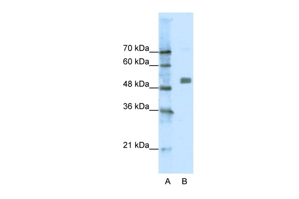 CHRNA9 antibody - N-terminal region (AVARP13019_P050) in Human Jurkat cells using Western Blot