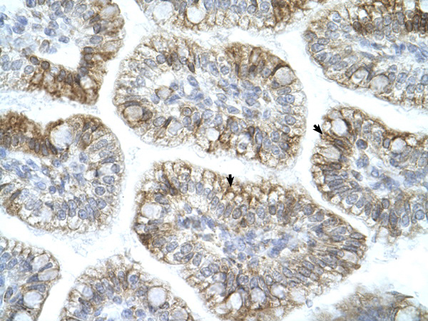 APBA1 antibody - N-terminal region (AVARP13059_P050) in Human Intestine cells using Immunohistochemistry