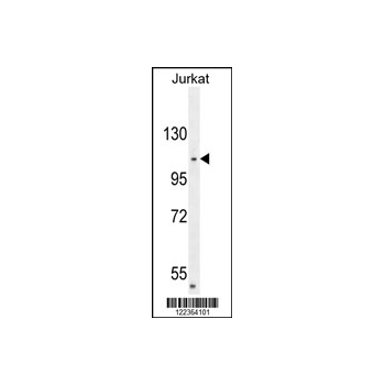 CENPC1 antibody - center region (OAAB00148) in Jurkat cells using Western Blot