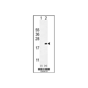 CDKN2C antibody - C-terminal region (OAAB00975) in CDKN2C cells using Western Blot