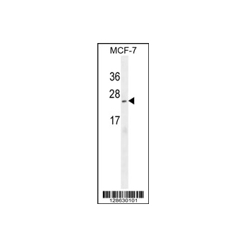 C9orf150 antibody - N-terminal region (OAAB01071) in MCF-7 cells using Western Blot