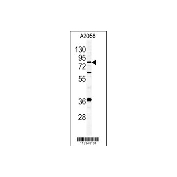 APEH antibody - N-terminal region (OAAB01119) in A2058 cells using Western Blot
