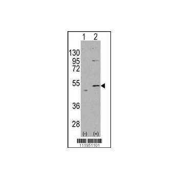 ALDH5A1 antibody - N-terminal region (OAAB01221) in ALDH5A1 cells using Western Blot