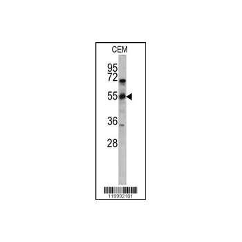 CD36 antibody - center region (OAAB01641) in CEM cells using Western Blot