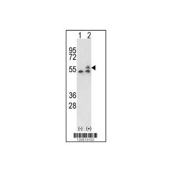 ATP5B antibody - center region (OAAB01752) in ATP5B cells using Western Blot