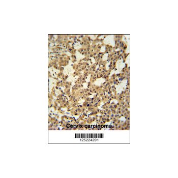 C10orf119 antibody - N-terminal region (OAAB02148) in human cervix carcinoma cells using Immunohistochemistry