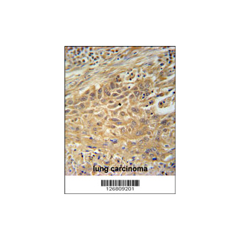 CNNM4 antibody - center region (OAAB02834) in human lung carcinoma cells using Immunohistochemistry