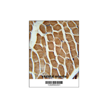 CTTNBP2 antibody - N-terminal region (OAAB02904) in Human Skeletal Muscle cells using Immunohistochemistry