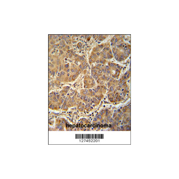 ATP5D antibody - N-terminal region (OAAB03367) in human hepatocarcinoma cells using Immunohistochemistry