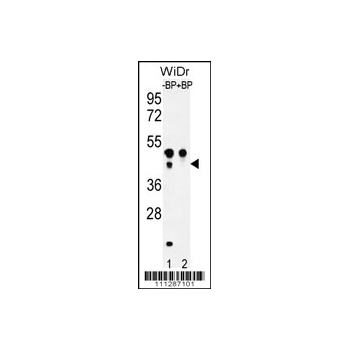 ATF4 Antibody (OAAB03441) in WiDr cells using Western Blot
