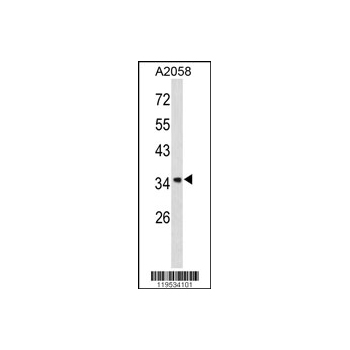 ANXA1 antibody - center region (OAAB03600) in A2058 cells using Western Blot