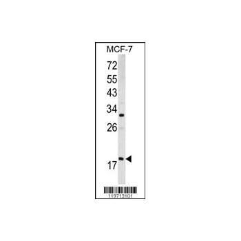 ARF3 antibody - center region (OAAB03621) in MCF-7 cells using Western Blot
