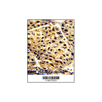 AADAC antibody - C-terminal region (OAAB03900) in human hepatocarcinoma cells using Immunohistochemistry