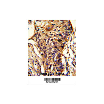 BCKDHA antibody - C-terminal region (OAAB03929) in human lung carcinoma cells using Immunohistochemistry