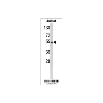 BCKDHA antibody - C-terminal region (OAAB03929) in Jurkat cells using Western Blot