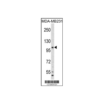 C6 antibody - N-terminal region (OAAB04053) in MDA-MB231 cells using Western Blot