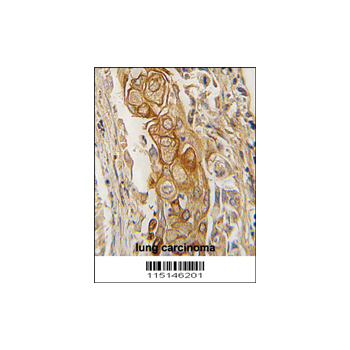 ACPP antibody - C-terminal region (OAAB04633) in human lung carcinoma cells using Immunohistochemistry