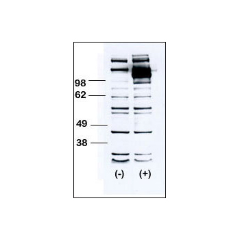 CSF1R antibody - C-terminal region (OAAB04651) in HEK-293 cells using Western Blot