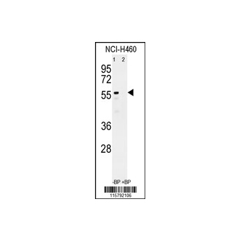 CYP3A4 antibody - center region (OAAB04841) in NCI-H460 cells using Western Blot