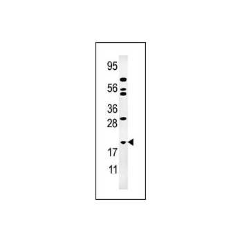 AK1 antibody - N-terminal region (OAAB05075) in Jurkat cells using Western Blot