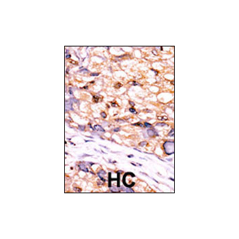 CTDSP1 antibody - C-terminal region (OAAB05084) in human cancer cells using Immunohistochemistry
