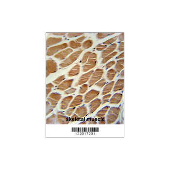 ACADL antibody - center region (OAAB05128) in Human Skeletal Muscle cells using Immunohistochemistry