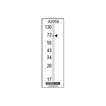 ATF6 antibody - center region (OAAB05276) in A2058 cells using Western Blot